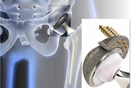 An artificial hip is created using a 3D printer.