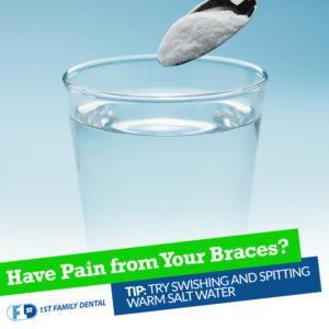 10  Khuyến nghị để giảm đau khi niềng răng