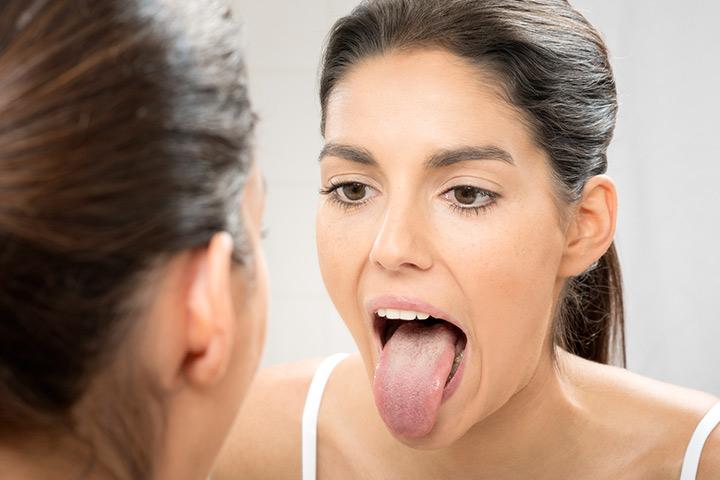 Nhận diện 7 vấn đề sức khỏe qua lưỡi của bạn - Ảnh 3.