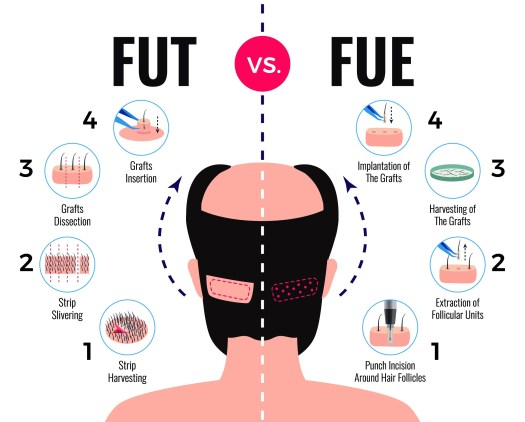 FUE or FUT: Which is the Best Hair Transplant Technique in Jaipur