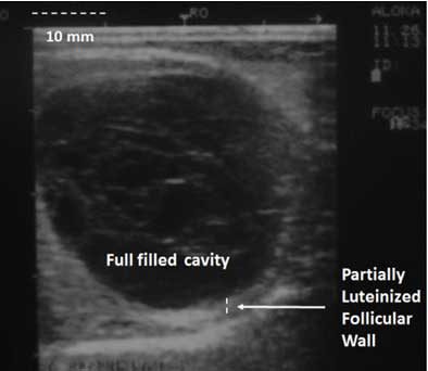 Ultrasonogram of an ovarian follicular cyst of 35 mm diameter. A. The cavity is fully filled with fluid. A partially luteinized follicular wall (3 mm) can also be observed (Linear transducer of 5.0 MHz).