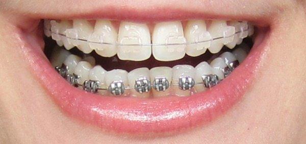 Niềng răng sứ giá bao nhiêu tiền? Bảng giá Chuẩn & Mới Nhất 2018