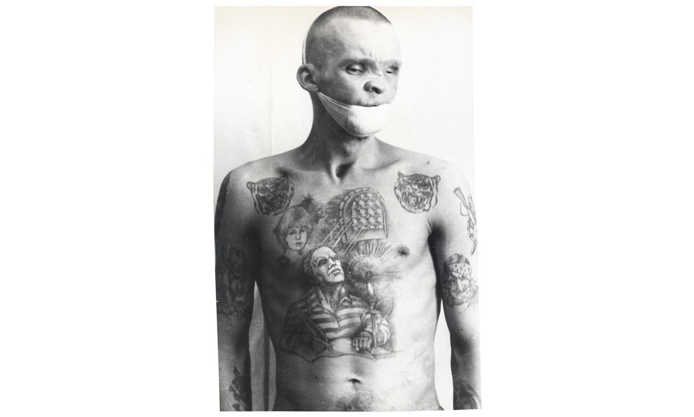Один из многих заключённых, заразившийся сифилисом, СПИДом или столбняком в результате нанесения наколки в антисанитарных условиях.