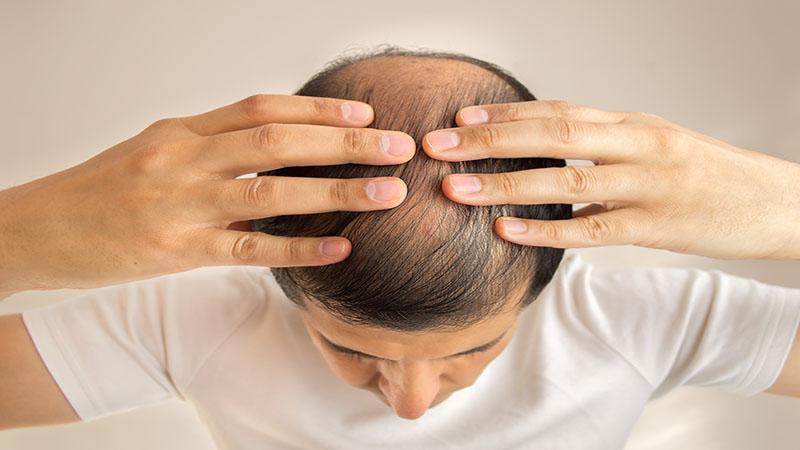 alopecia queda de cabelo