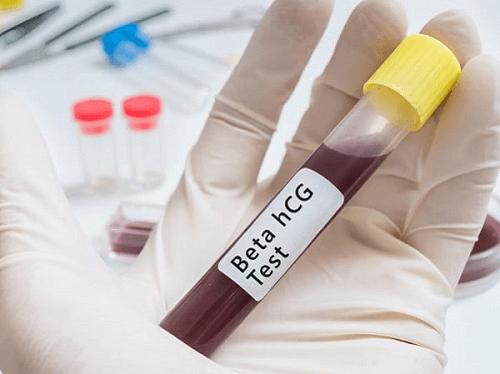 Xét nghiệm HCG âm tính nhưng vẫn có thai là sao?  - Ảnh 1