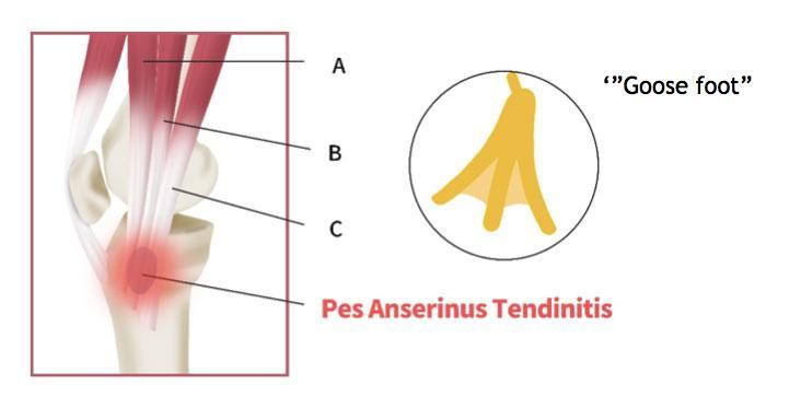 C:\Users\Deniz\Pictures\Pes-Anserine-Tendinopathy-Bursitis-image-3.jpg