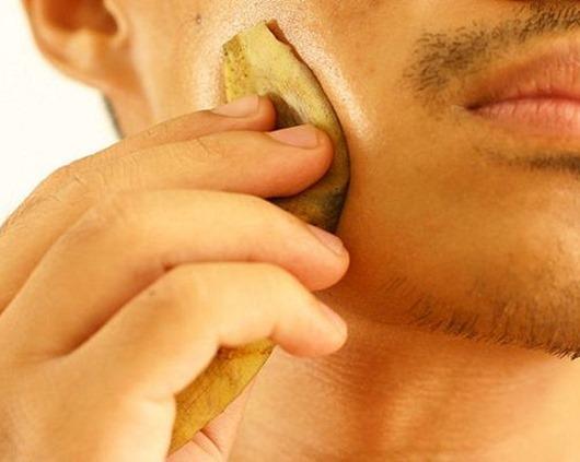 Избавитесь от ПРЫЩЕЙ ГИЛЬМИНТОВ И ПСОРИАЗА с простой кожурой банана