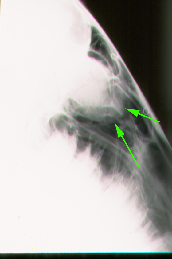 Radiograph showing a progressive ethmoidal hematoma (arrows) as a rounded soft-tissue radio-opacity lying in front of the orbits.
