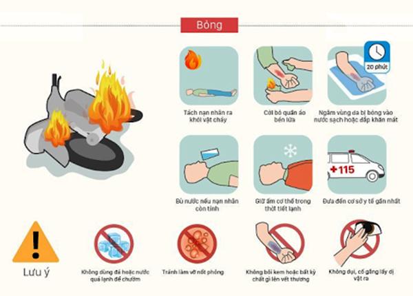 Các bước sơ cứu bỏng do nhiệt và điện giật - Ảnh 1