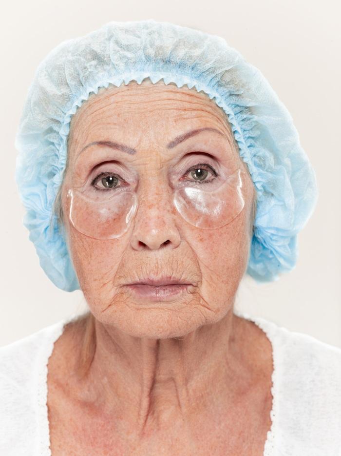 mujer adulta que se realizó una blefaroplastía