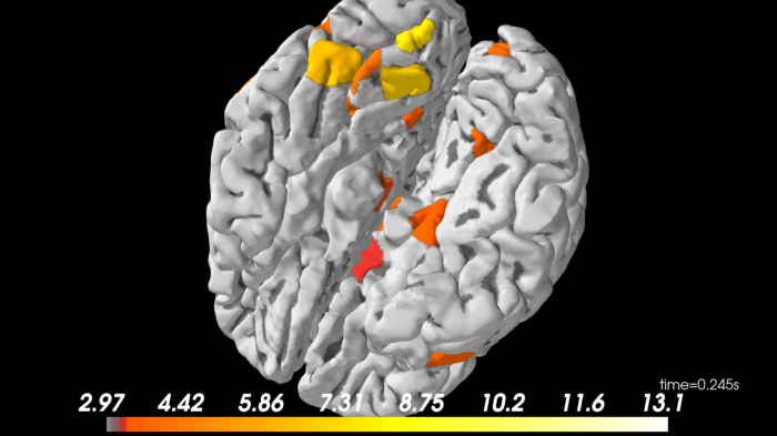 Image of the generated source localization using the sample data