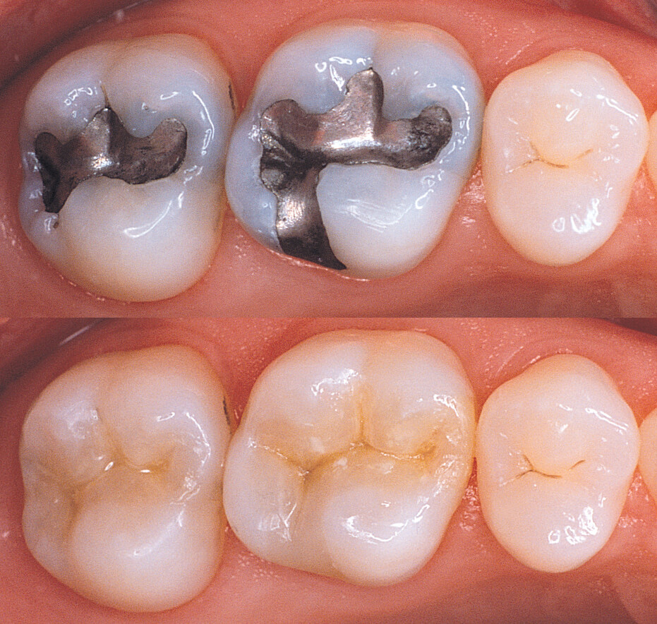 When And Why Do My Dental Fillings Need To Be Replaced