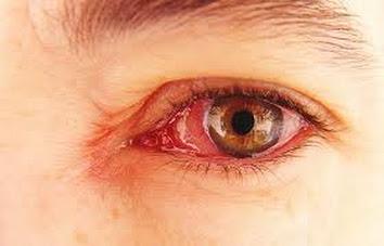 Infeksi Mata & Pengobatannya
