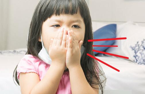 Trẻ bị ho có đờm, khi nào cần đi khám bệnh?