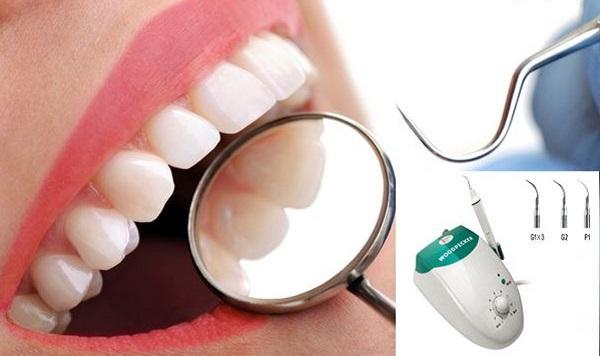 Giải đáp: Cạo vôi răng bao lâu 1 lần, mất bao lâu để hoàn thành? 1