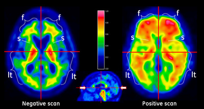 my story belton amyvid pet scan 6-14.jpg