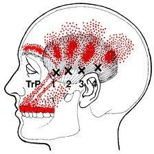 Temporalis