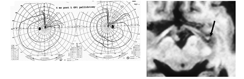 Visual Field Loss Archives - Neuro-ophthalmology - School ...