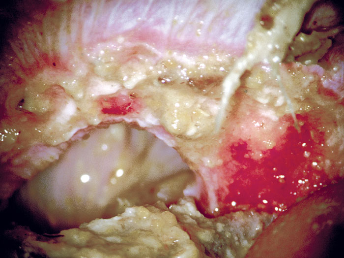 The necrotic skin and the anterior wall of the crop have been removed in the scab