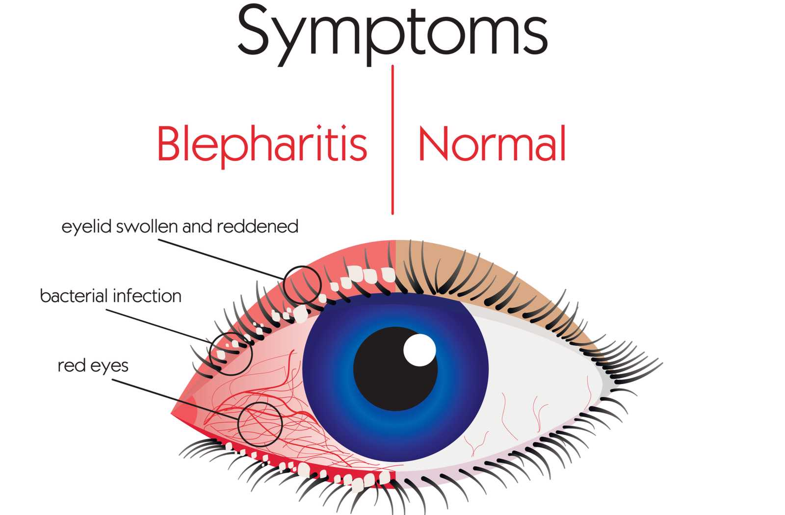 Diagram comparing the symptoms of blepharitis to a normal, healthy eye