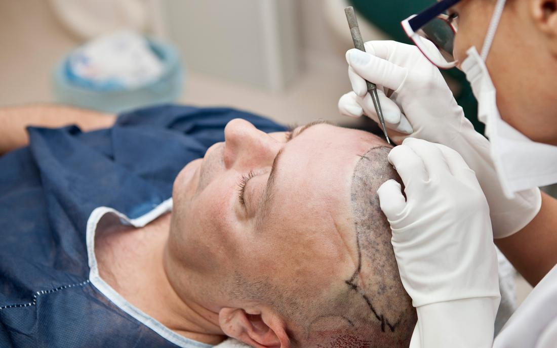 hair transplant surgeon in jaipur