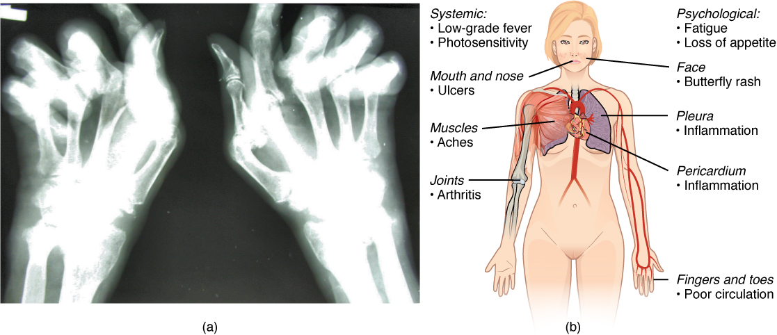 ... Arthritis and Lupus.jpg