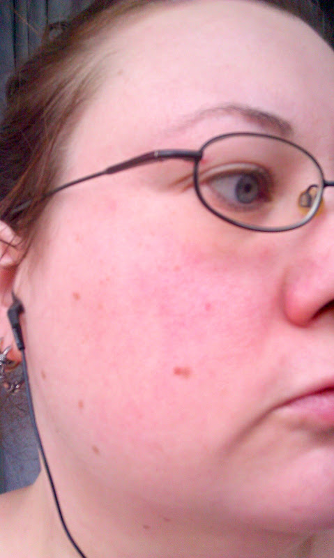 The side of my face, covered in red blotches with patches of visible blood vessels