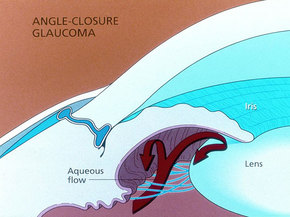 A visual representation of narrow angle glaucoma.