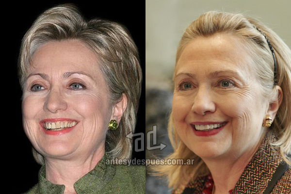 The new smile of Hillary Clinton, afterdental surgery