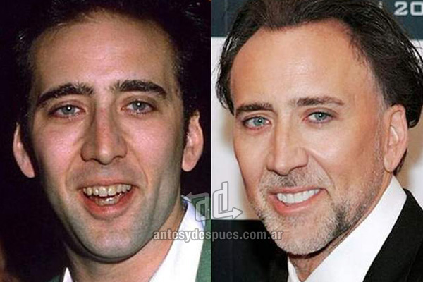 The new smile of Nicholas Cage, afterdental surgery