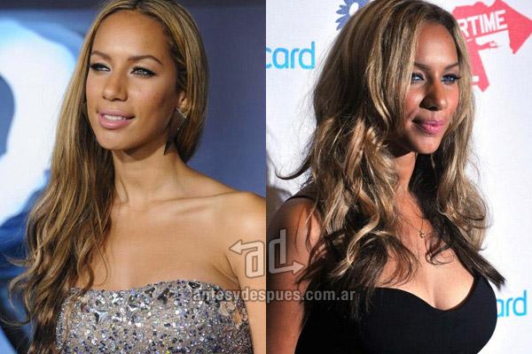 Los pechos operados de Leona Lewis