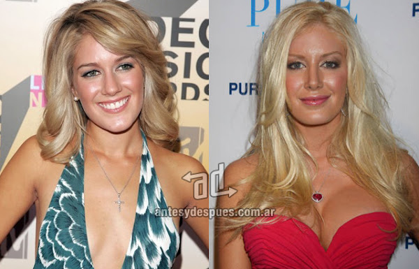 Heidi Montag breast augmentation