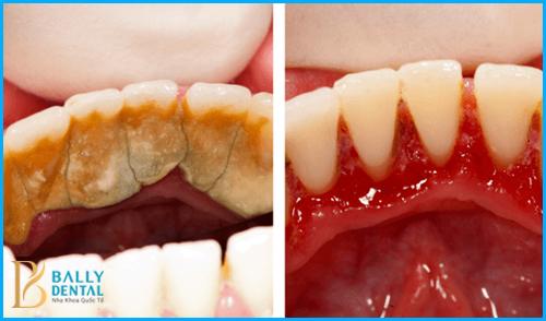 Quá trình lấy cao răng bằng sóng siêu âm tiêu chuẩn 1