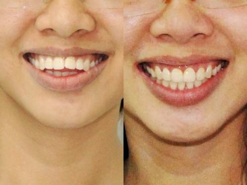 Cách nắn chỉnh răng hô có hiệu quả khi bị hô hàm không?