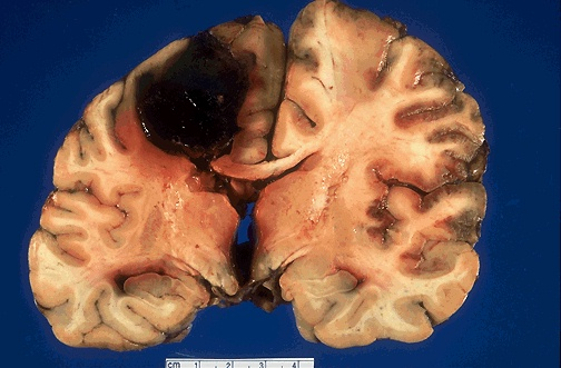 An Intracerebral Hemorrhage in a cocaine addict's brain.