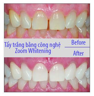 Tẩy trắng răng có ảnh hưởng gì không - có làm mòn men răng không? 1