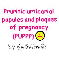 บันทึก puppp