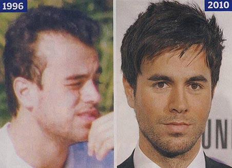 Balding Celebrities