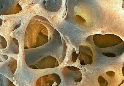jaringan%20tulang Foto foto mikroskop elektron (1) : Sel dan jaringan makhluk hidup