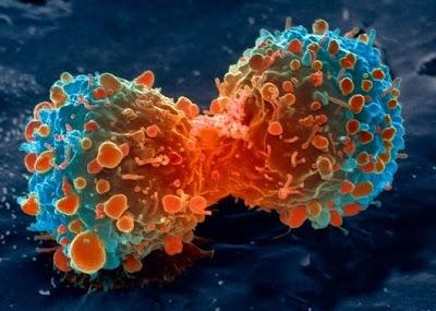 sel%20kanker%20tenggorokan Foto foto mikroskop elektron (1) : Sel dan jaringan makhluk hidup