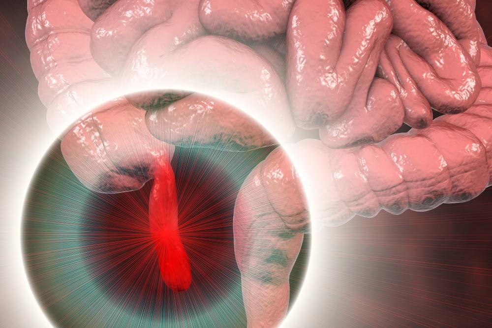 A localização do apêndice no corpo humano. (Fonte: Shutterstock/Kateryna Kon/Reprodução)