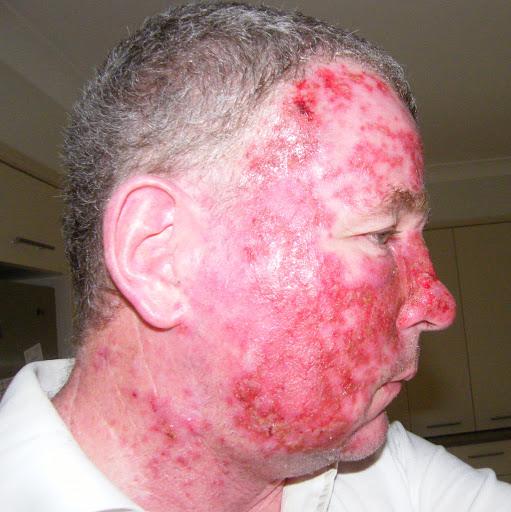 Aldara Cream For Skin Cancer