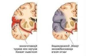 інсульт у гострій фазі