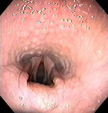 Pharyngeal grade III - hyperemic follicles located close together, covering the entire dorsal and lateral walls of the nasopharynx often associated with nasopharyngeal abnormality such as flaccid epiglottis as in this case.