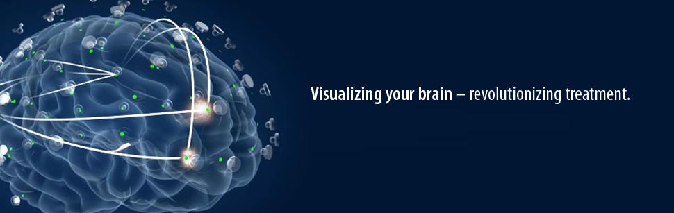 ElMindA – революция в лечении заболеваний головного мозга