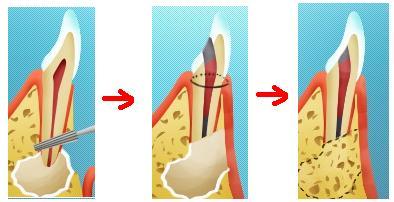 Хирургическое удаление кисты