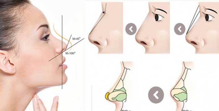 Bác sĩ sẽ sử dụng sụn sinh học Hàn Quốc để nâng cao phần sóng mũi