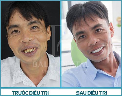 Răng sứ cercon có tốt không ? - Nha Khoa Bally 1