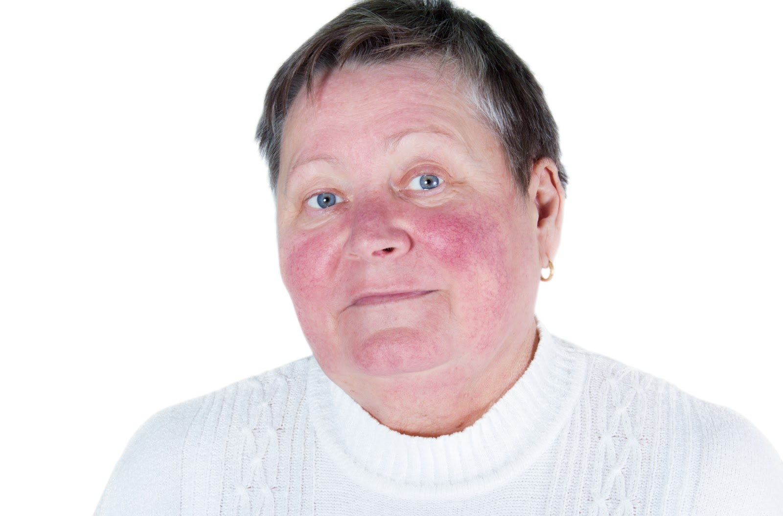middle-aged woman with Rosacea