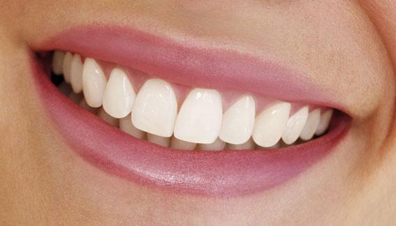 Răng sứ Ceramill Zolid loại răng cao cấp đảm bảo tính thẩm mỹ 1
